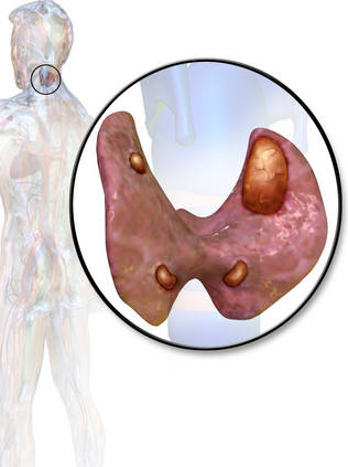 аденома в околощитовидных железах