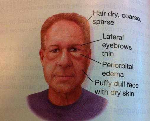 основные признаки микседемы на лице