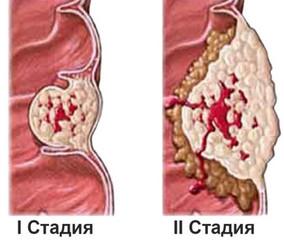 стадии рака