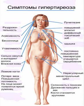 тиретоксикоз