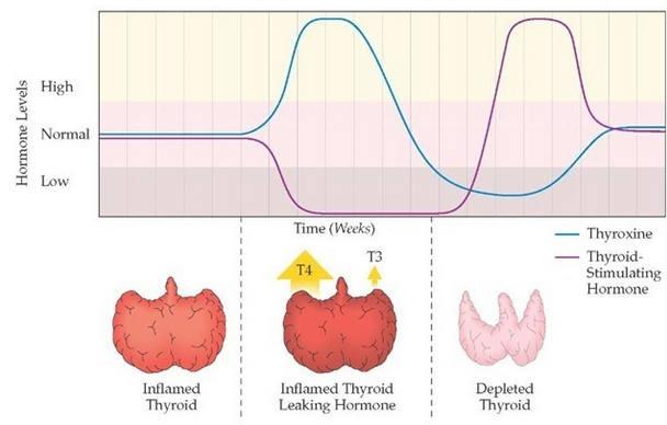 утечка гормонов щж при воспалении