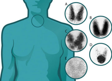 Сцинтиграфия щитовидной железы: сущность, противопоказания, отзывы