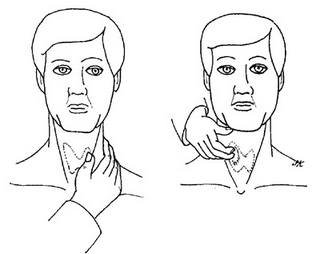 Самостоятельная проверка щитовидки