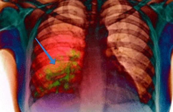 Легкие, пораженные паразитом клебсиеллой