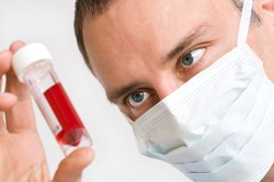 Анализ крови для диагностики гипотиреоза