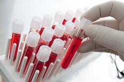 Анализ крови при сухом кашле