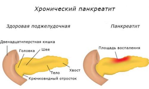 Хронический панкреатит (код по МКБ 10 - К86) - воспаление тканей поджелудочной железы (ПЖ), характеризующееся прогрессирующим разрушением клеток органа
