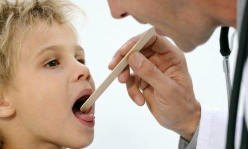 Герпес в горле имеет похожие признаки как у ангины или стоматита, ребенку тяжело глотать, так как пузырьки сливаются и образуют язвочки