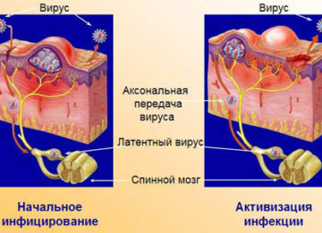Возможные симптомы и необходимое лечение при вирусе герпеса