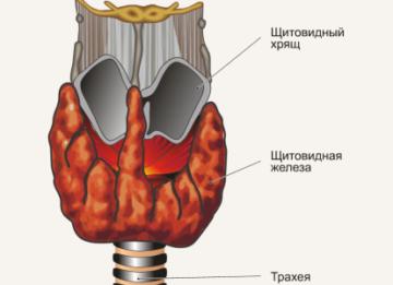 Симптомы и причины узлового зоба щитовидной железы