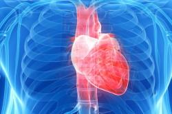 Болезни сердца - причина инсульта