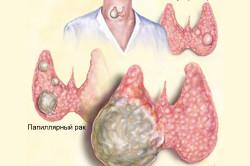 Схема папиллярного рака щитовидной железы