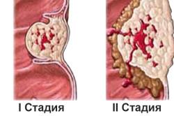 Стадии рака щитовидной железы