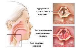 Воспаление голосовых связок при ларингите
