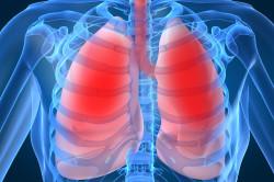 Воспаление легких - причина ларингита
