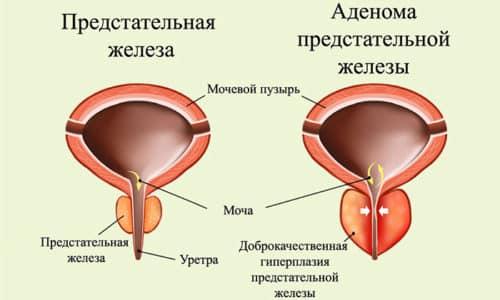 Одна из причин по которой назначают суппозитории это аденома простаты