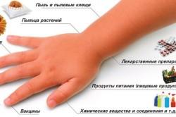 Аллергены, способствующие развитию ларингита у детей