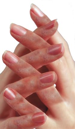 Проявление аллергии на шеллак
