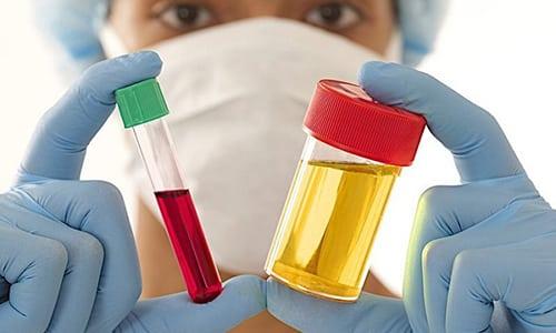 В диагностике хронического панкреатита важную роль играют биохимические анализы крови и мочи