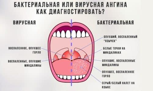 Основной причиной, вызывающей такое заболевание, как герпесная ангина, является процесс инфицирования вирусами