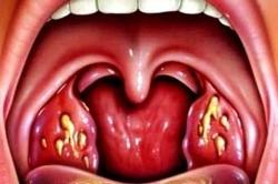 Гнойные язвы в горле при ангине