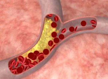 Эффективное лечение атеросклероза народными средствами