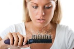 Выпадение волос как признак аутоимунного тиреодита