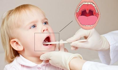 Проблема красного горла у ребенка