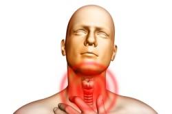 Боль в горле при тонзиллите