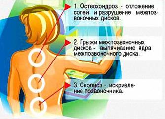 Основные причины боли в позвоночнике