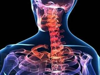 Почему болит шея сзади