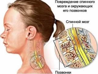 Одна из причин боли в шее