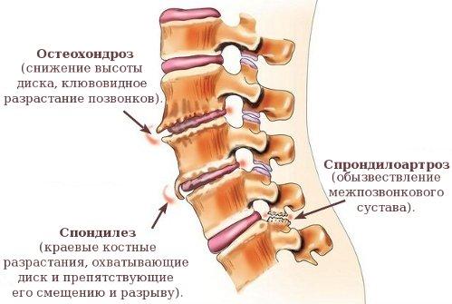 Заболевания позвоночника как причина боли в спине