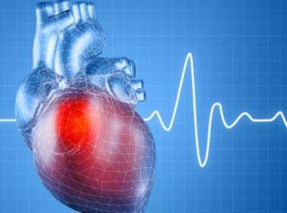 Причиной боли может быть инфаркт