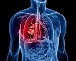 Боль при дыхании - серьезный симптом