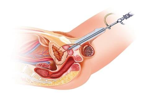Лазерная терапия при простатите ускоряет восстановление пораженных тканей предстательной железы, нормализует кровообращение органов малого таза