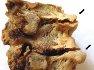Костные наросты - остеофиты