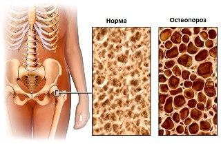 Денситометрия наглядно показывает плотность кости