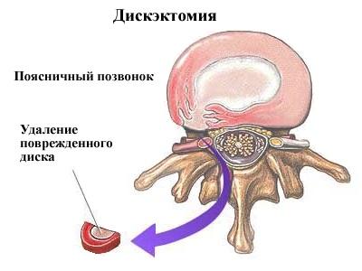 Что происходит при дискэктомии