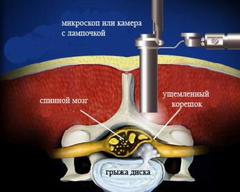 Эндоскопическая дискэктомия