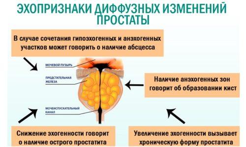 Под действием различных патологий в мочеполовой системе мужчины могут происходить диффузные изменения в структуре предстательной железы