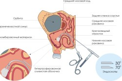 Принцип аденотомии