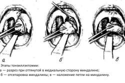 Этапы тонзиллэктамии