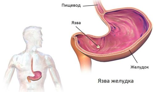 Осложнением заболевания может стать язва желудка