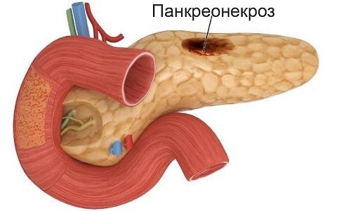 Геморрагический панкреонекроз - смертельно опасное патологическое состояние, характеризующееся полным или частичным разрушением тканей поджелудочной железы с возникновением кровоизлияний