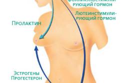 Схема гиперпролактинемии