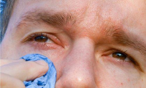 При поражении глаз офтальмогерпесом возможны серьезные осложнения, вплоть до потери зрения