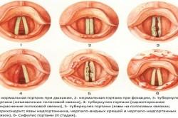 Схема проявления туберкулеза гортани
