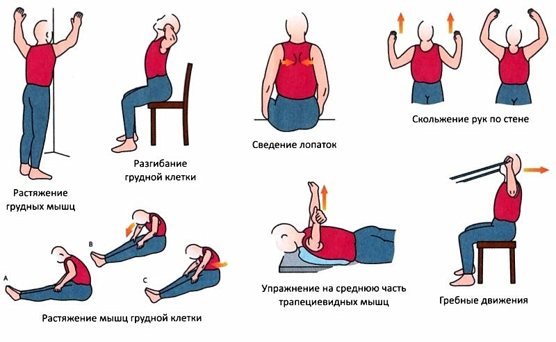 Упражнения при грудном радикулите