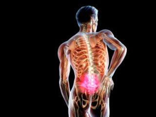 Межпозвоночная грыжа - осложнение остеохондроза